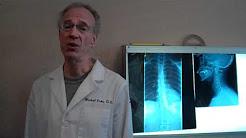 hqdefault - Back Pain Center Vacaville, Ca