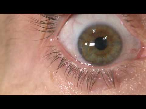 FUNGAL KERATITIS: CONTACT USERS LOOK OUT!