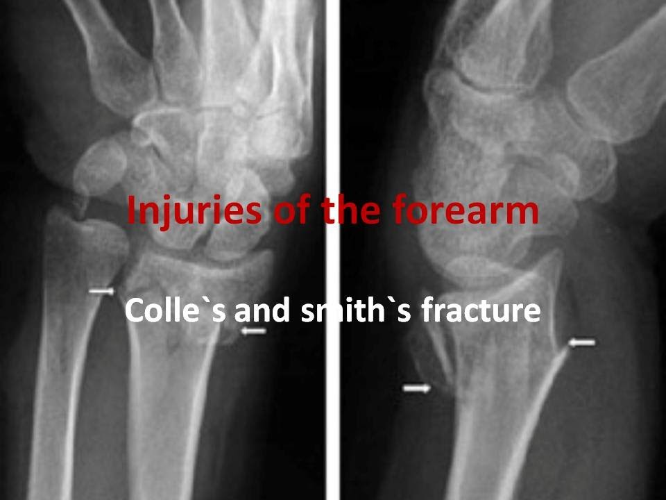 Colle S And Smith S Fracture Youtube