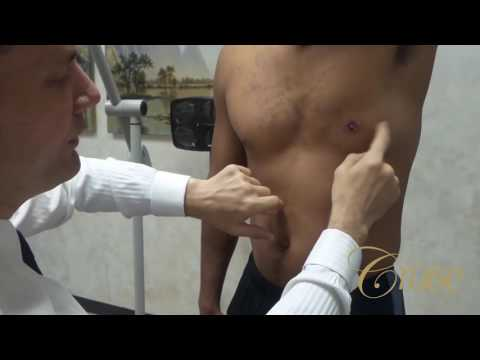 Gynecomastia Post Surgery Complications - Seroma - YouTube