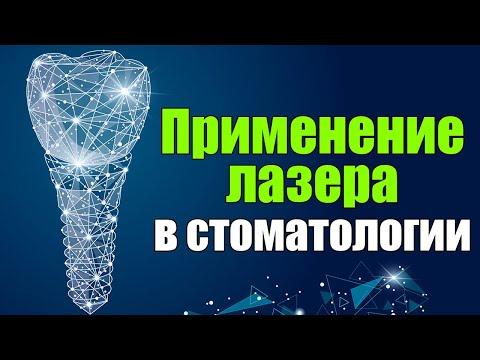 Применение лазера в стоматологии и лазерной имплантации | Доктор Туран Гюльдаш