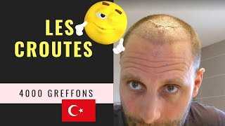 Greffe de cheveux FUE en Turquie [Vidéo 6] - Suppression des croûtes- 4000 Greffons