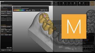 Zirkonzahn CAD/CAM Software-Module Prettau® (Fully Anatomic)