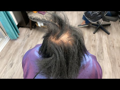 How to fix damaged hair| Thinning in crown
