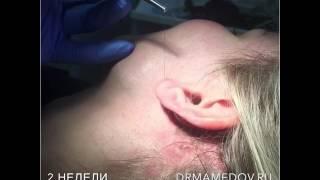 Комплексное омоложение лица (снятие швов, продолжение), Мамедов Русиф