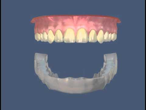 Стоматология тверь отбеливание зубов