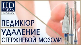 Мастер-класс по удалению стержневой мозоли // HD Freza®