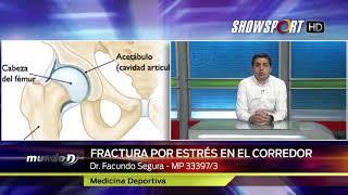 DR SEGURA FRACTURA POR ESTRES