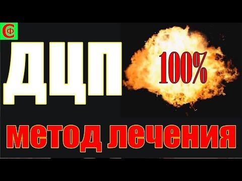 100% метод лечения ДЦП. Фролков С.В.