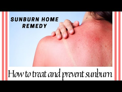 Sunburn home remedy | How to treat and prevent sunburn