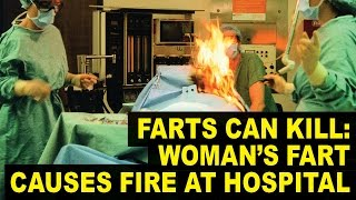 Woman Seriously Burned After Her FART Starts Fire During Surgery