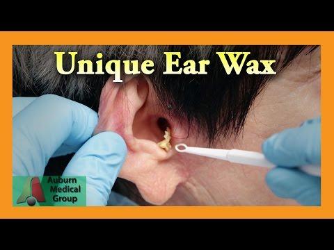 Eight Ear Washes | Auburn Medical Group