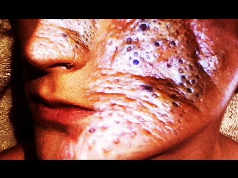 Disgusting World Of Pimples
