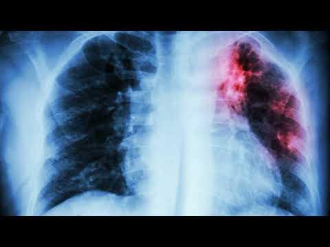 Симптомы туберкулеза. Как определить туберкулез в домашних условиях на ранней стадии?