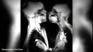 MRI SCANS TAKE A LOOK AT INTERNAL ORGANS DURING SEX