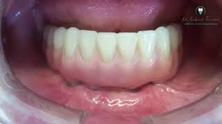 Dentadura Inferior Sobre Implante