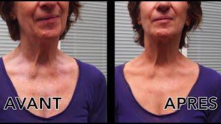 Covermark : camoufler des taches dépigmentées / vitiligo avec Leg Magic Fluid