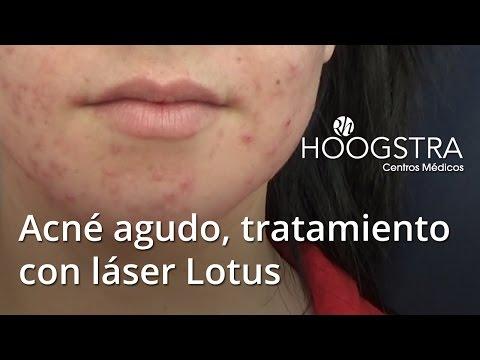 Acné agudo, tratamiento con láser Lotus (15039)