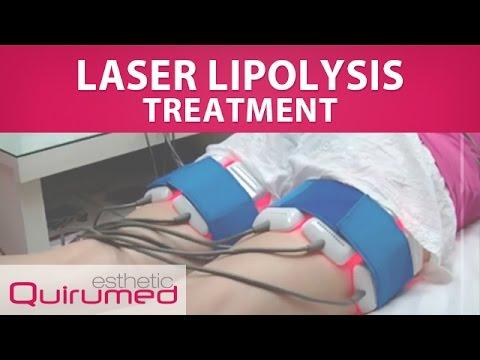 Laser Lipolysis Treatment (734-BL009) - YouTube
