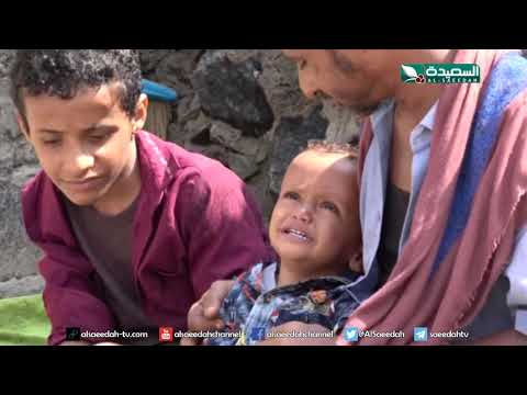 سنابل الخير - أطفال أسرة يعانون من سوائل في الدماغ  30-9-2019م