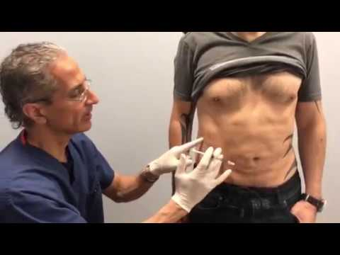 Treating Tummy Fat Pooch in Thin Patients