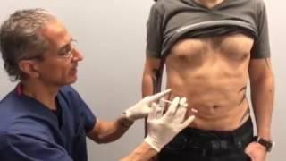 Kybella Stomach Injection