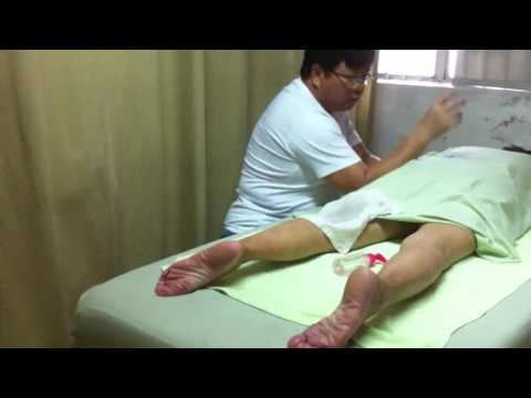 ComprehensiveTraditional Chinese Medicine Therapy for Lumbar Compression Fractures