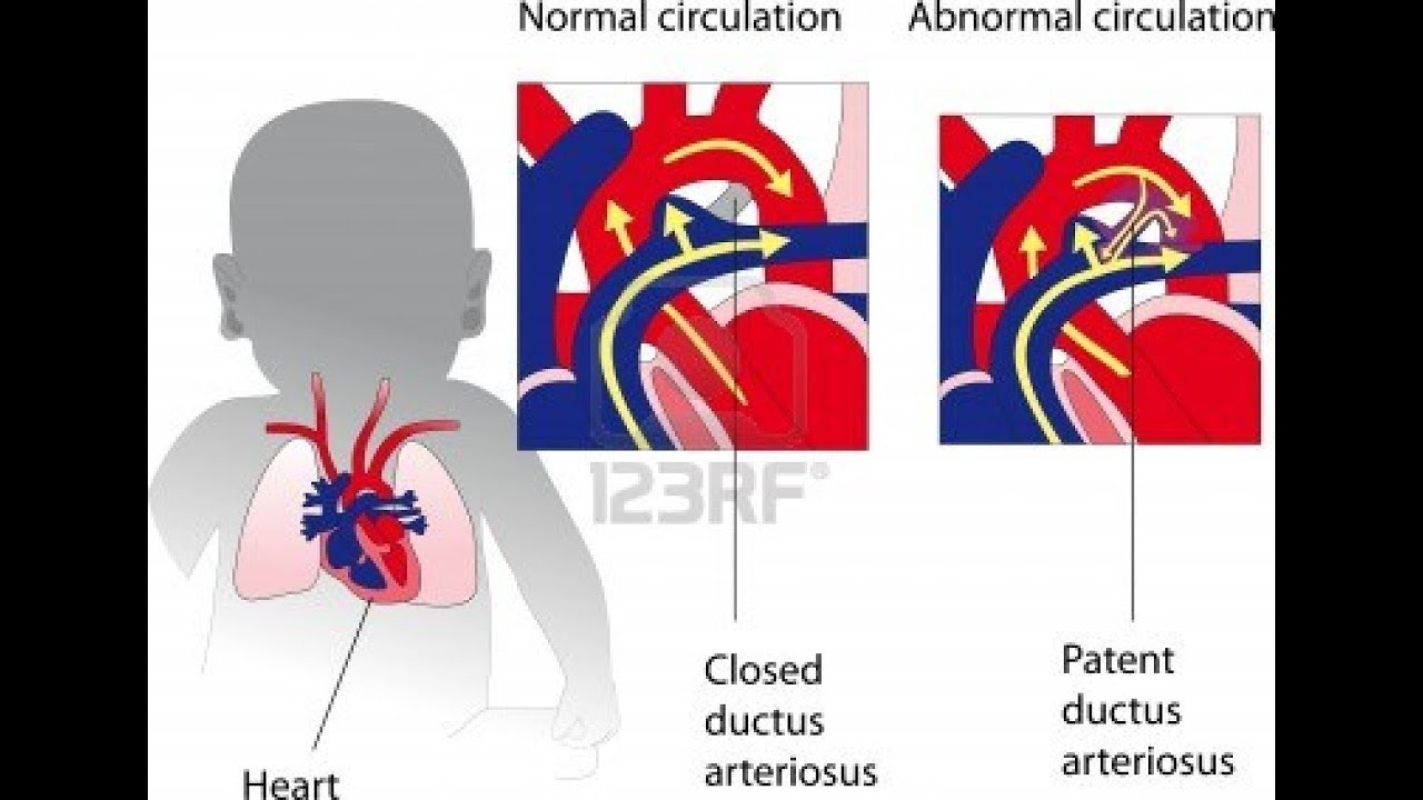 Audio Heart Sound of Patent Ductus Arteriosus (PDA) USMLE - Real ...
