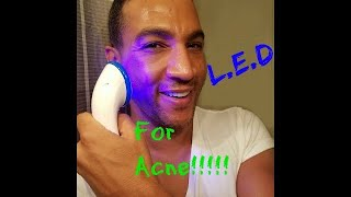 LED Skin Device you MUST get for acne!