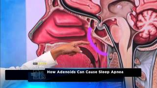 What causes your child to snore Medical Course