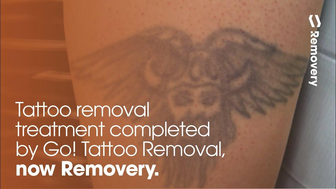 3rd laser tattoo removal treatment progress photos youtube for Absolute laser tattoo removal