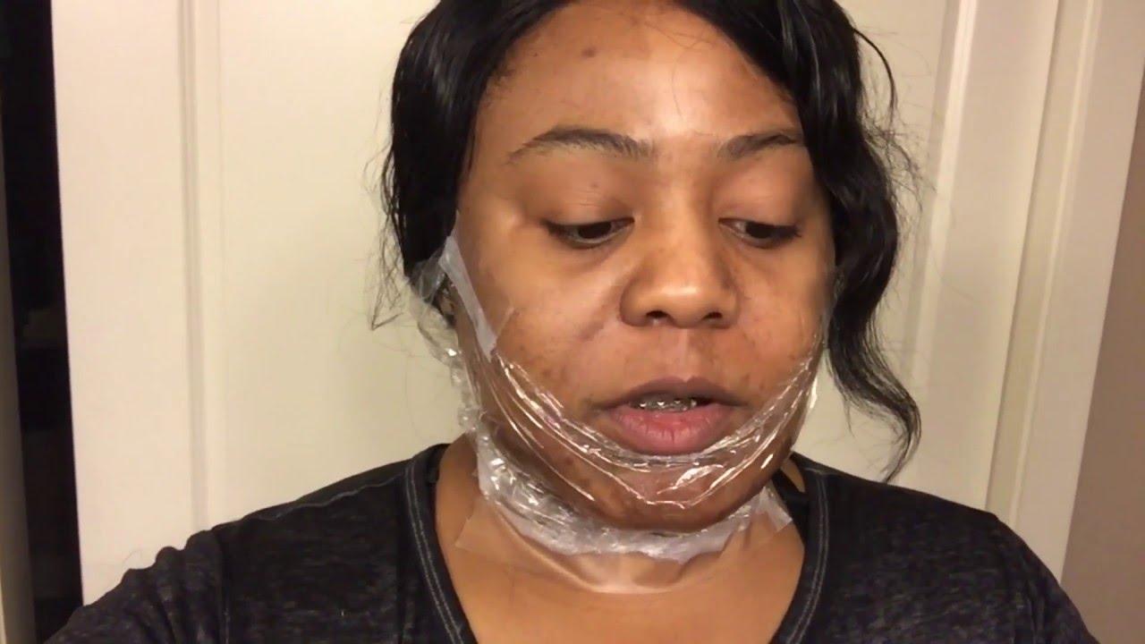 Electrolysis on black skin