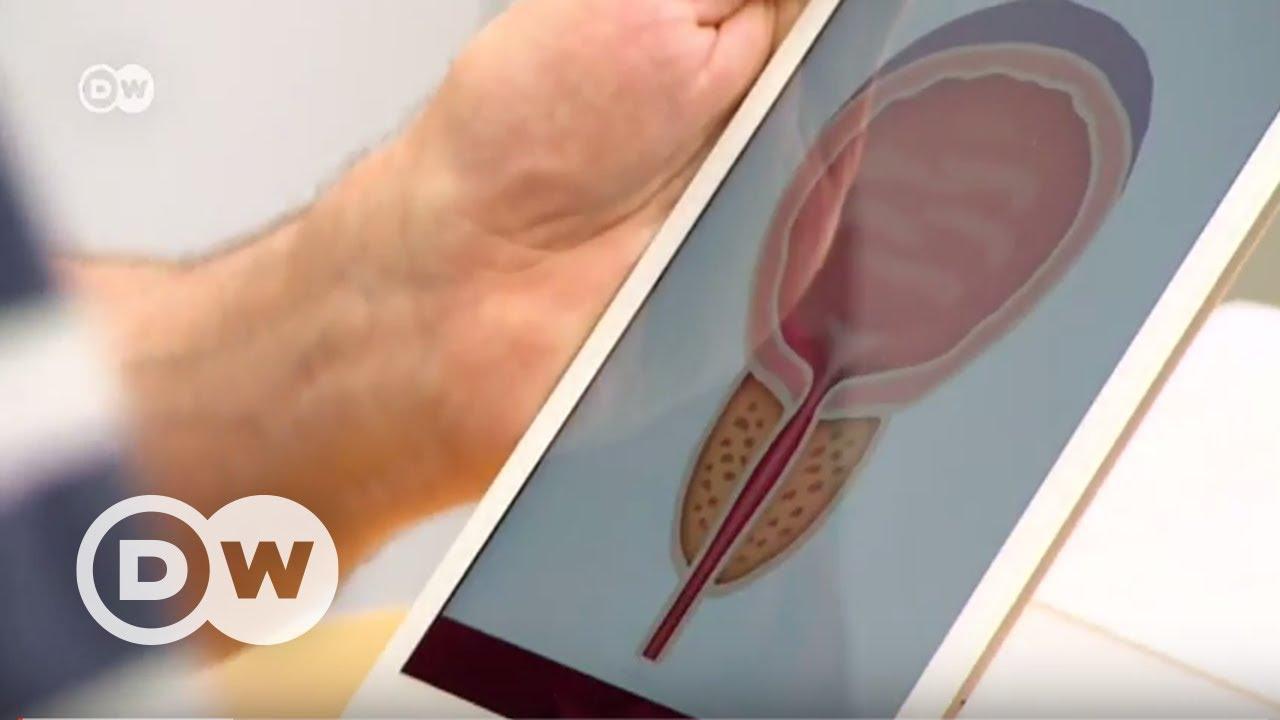 Prostat kanserinde erken teşhisin önemi - DW Türkçe