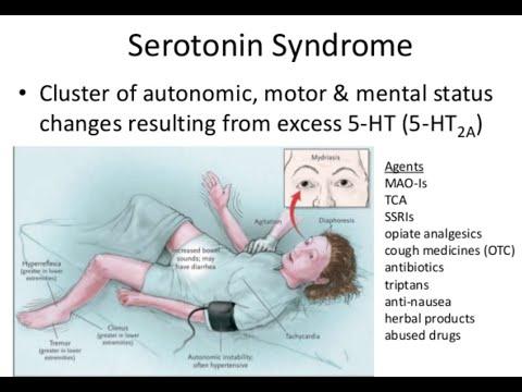 Serotonin Syndrome Youtube