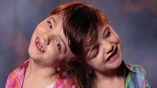 Conjoined Twins Can See Through Each Other's Eyes