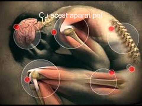 Unguent natural pentru osteocondroza cervicala