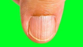D causar pode de sangramentos vitamina nariz deficiência no