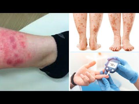 What Causes The Leg Rash In Diabetes|Diabetic Rash Treatment