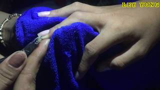 Pedicure Tutorial Ingrown Toenail Treatment on Elderly and Create Clean Clear Nails #10