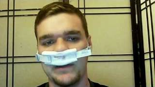 Deviated Septum / Nasal Polyp Surgery