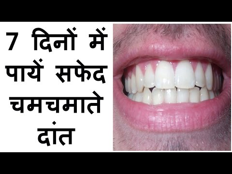 how to get white teeth fast at home in hindi make whitening tips yellow teeth solutions treatment