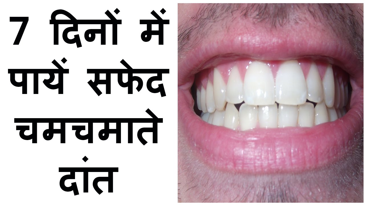 How To Get White Teeth Fast At Home In Hindi Make Whitening Tips