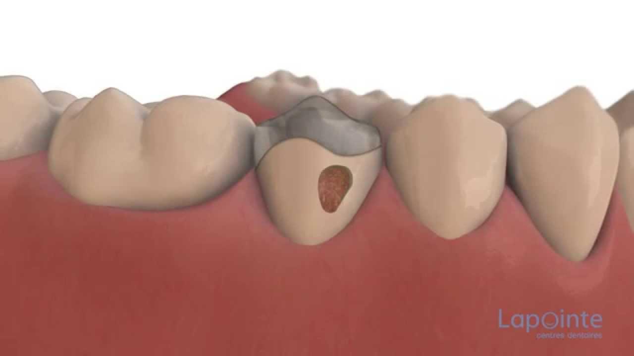 dentiste a la couronne