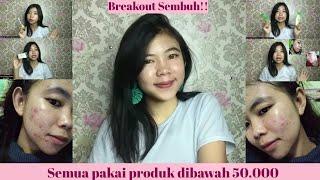 Download lagu Breakout Sembuh!! Update Skincare Routine Penyembuh Breakoutku | Shelly Ines Ardiani