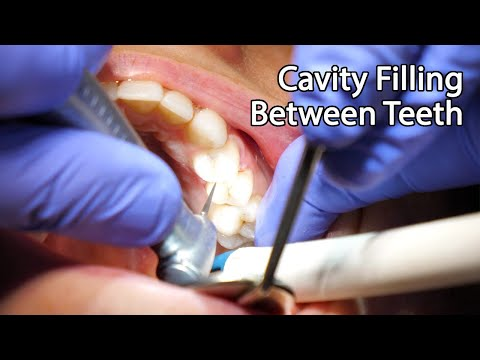 Dentist Filling A Cavity Between Teeth