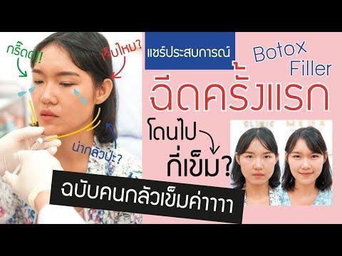 ฉีด Botox ครั้งแรกในชีวิต ลดกราม ลดริ้วรอย + ฉีด Filler คาง ฉบับคนกลัวเข็ม!!! | KWANGJU