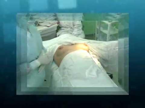 Implantes Allergan - Te mostramos el catlogo Natrelle