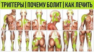 Спазм мышц | Миофасциальный синдром | Триггерные точки | Myofascial Trigger Point Back Pain