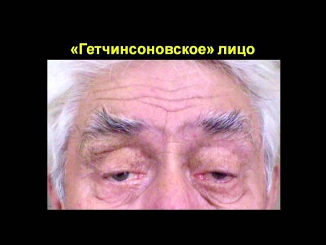 Зрачок Аргайлла Робертсона