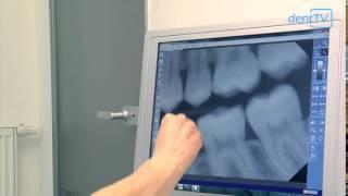 dentTV - Magazin vom 26. März 2014: Röntgen beim Zahnarzt | Säure: Vorsicht Schmelzfresser